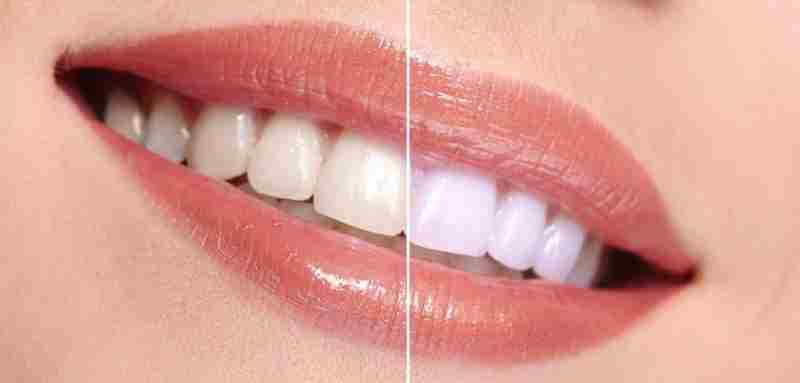 Image result for beli zobje
